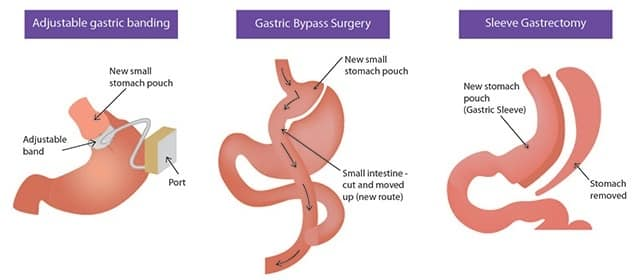 How Much Does Bariatric Surgery Cost - Bariatric Options