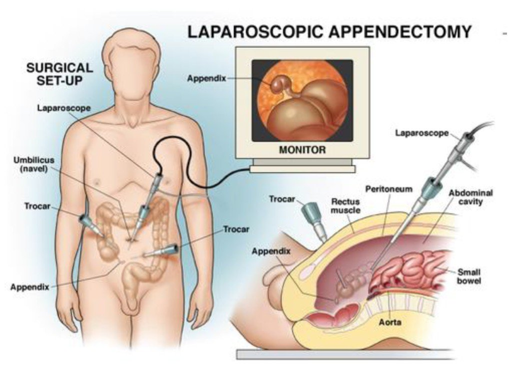 How Long Does an Appendectomy Take