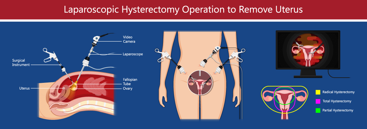 Laparoscopic Hysterectomy infographic.